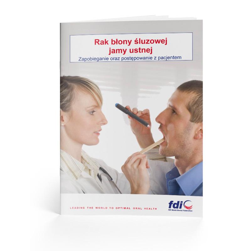 Rak błony śluzowej jamy ustnej - zapobieganie i postępowanie
